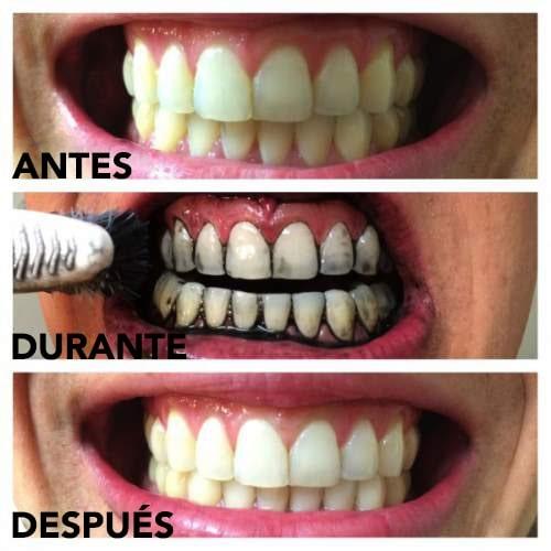 kit de blanqueamiento de dientes de carbón antes y después