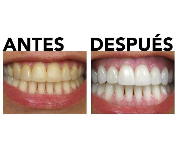 kit de blanqueamiento dental antes y después
