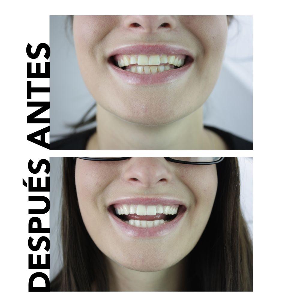 pasta de dientes natural para blanquear los dientes